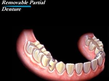 partialdental2