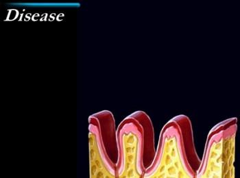 periodontal3